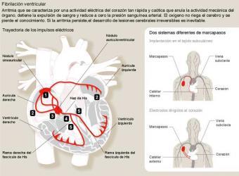 Fibrilacion_ventricular